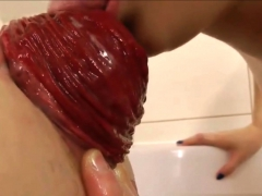 anal-prolapse-compilation-watch-more-on-orgasmcamsgirl-com