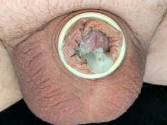 Pulling off condom from small spent dick